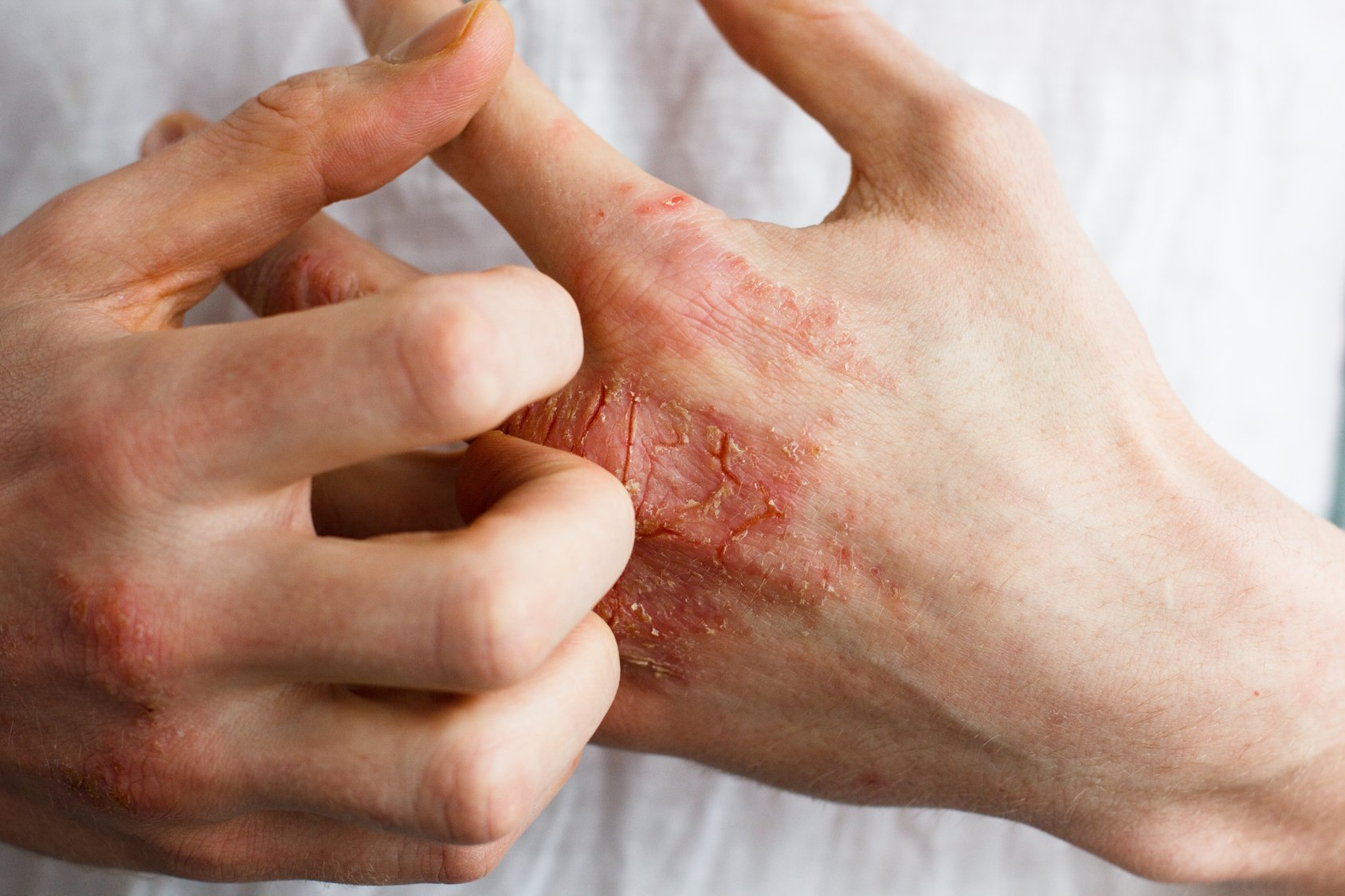 Atopic Eczema: What Is It? What Can You Do?
