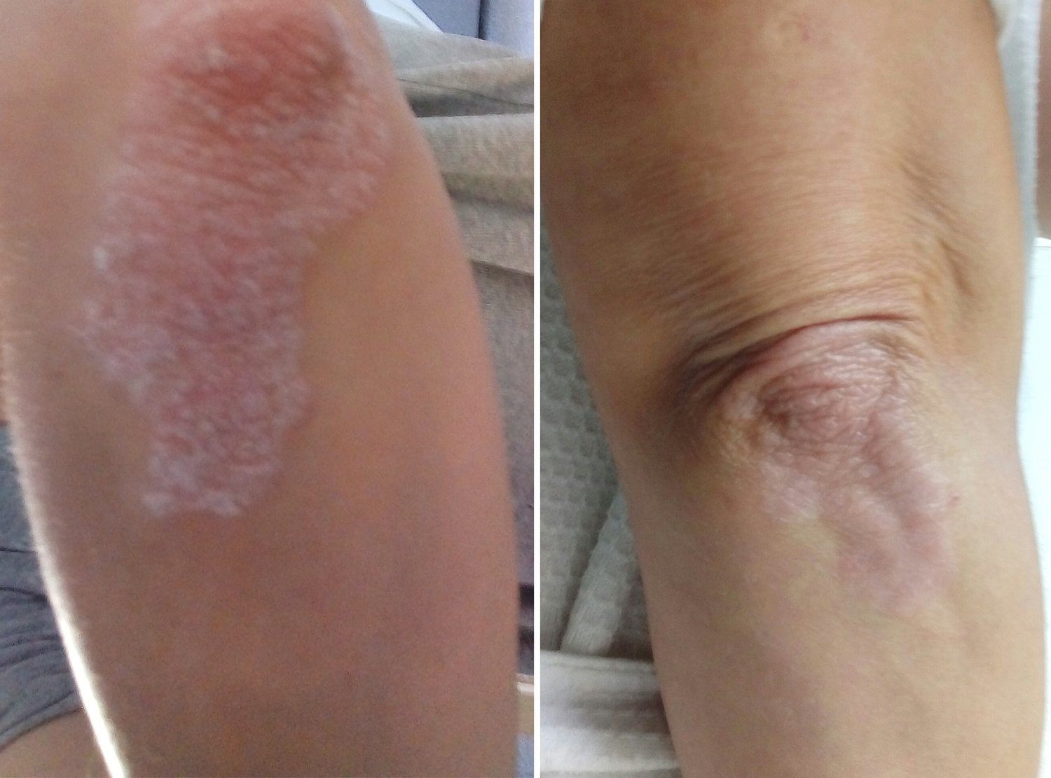 BEFORE & AFTER: Psoriasis sufferer Becky